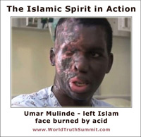 Islamic beliefs - Umar Mulinde, faced burned by acid